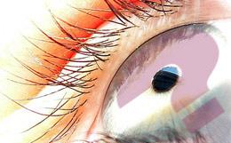 Opération laser des yeux   Questions   Réponses   Choisir ses lunettes 7186e6a5d105